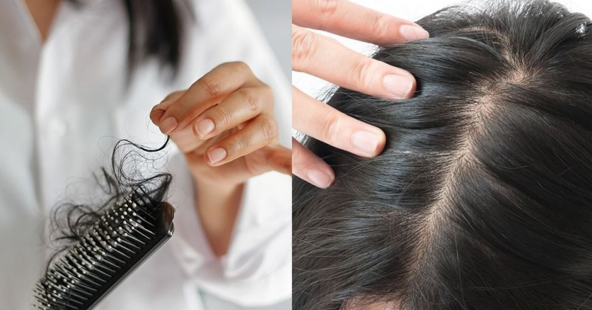 解構掉髮成因 4大習慣有助生髮 提升頭皮健康